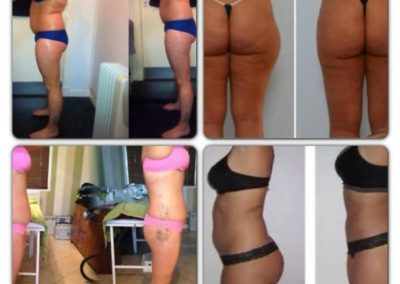 shrinking violet body wrap nuneaton before and after